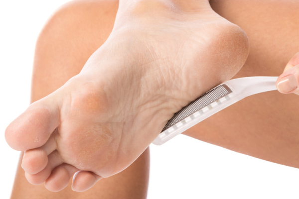 Female feet and callus remover tool